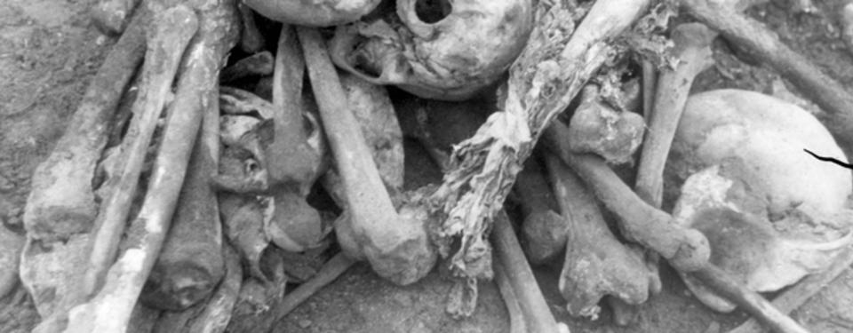 Bilden visar kranium och bendelar.